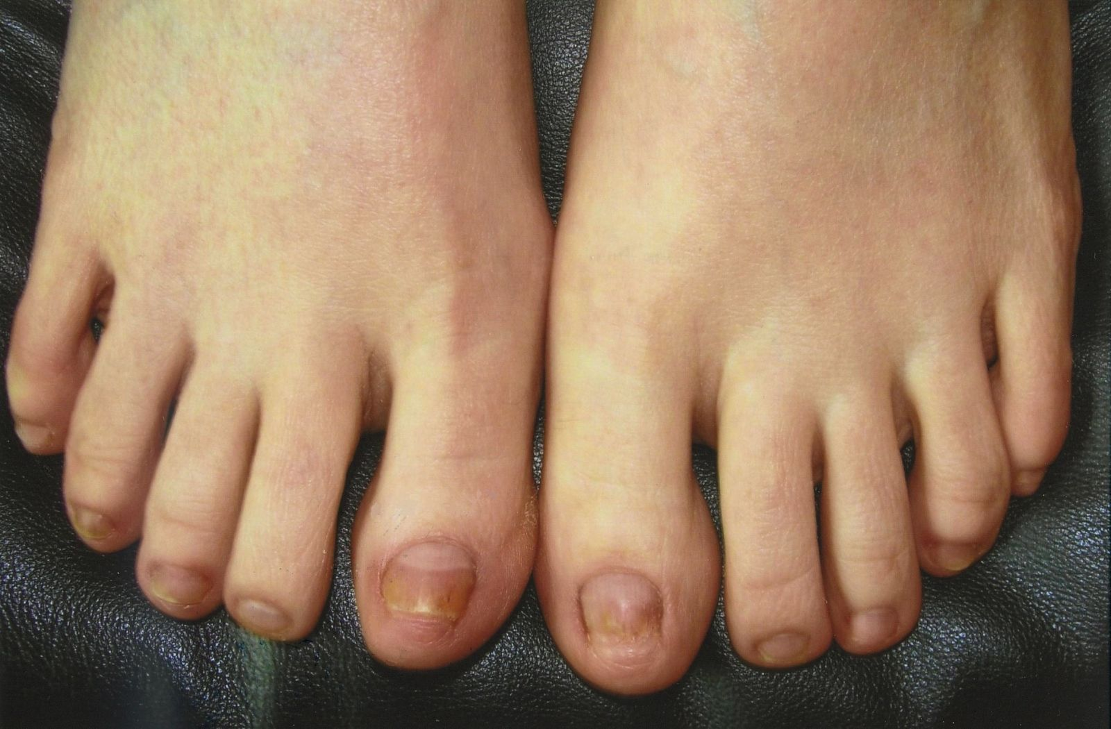 Three months after the laser treatment for toenail fungus
