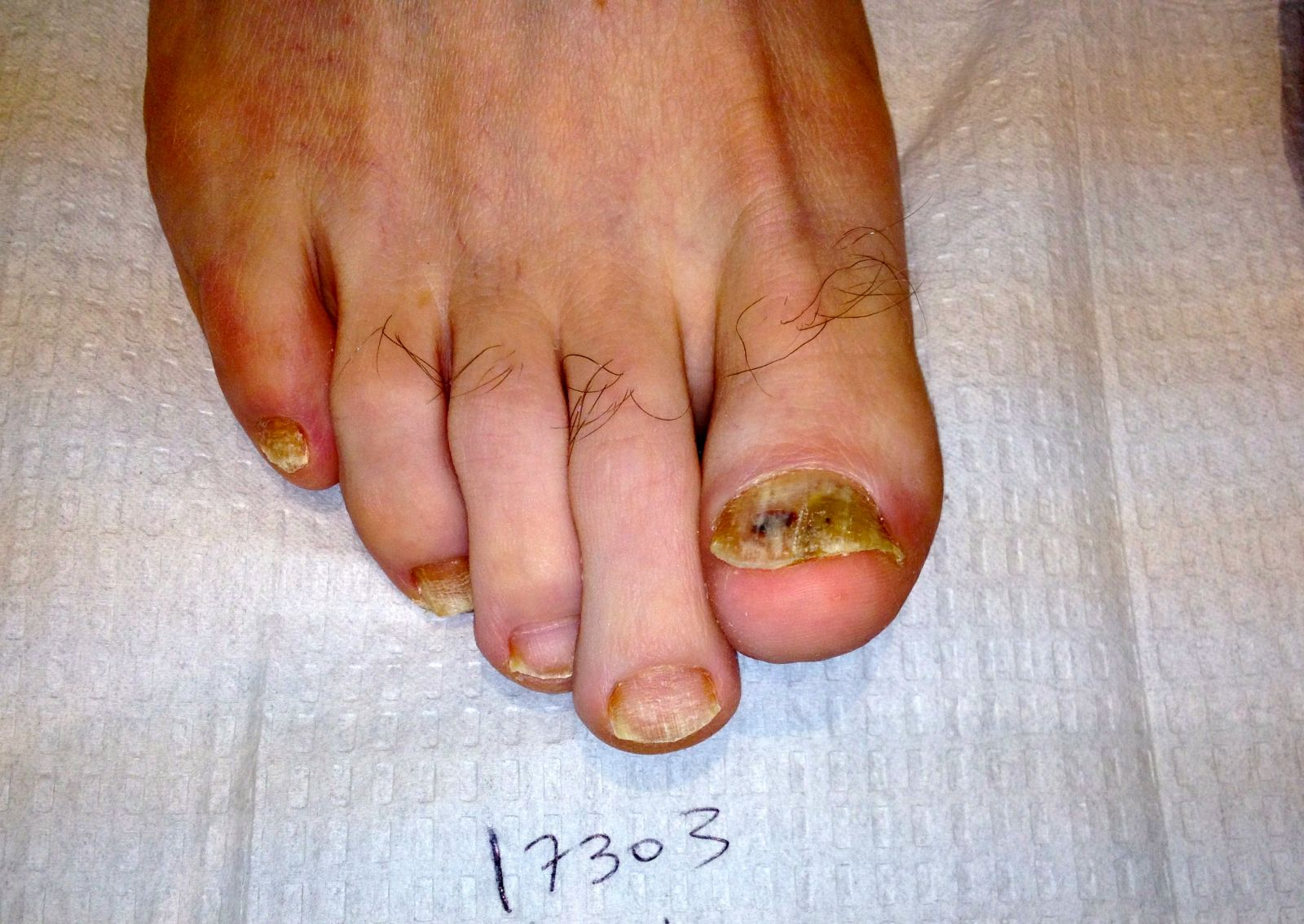 Toenail Fungus Before And After Photos