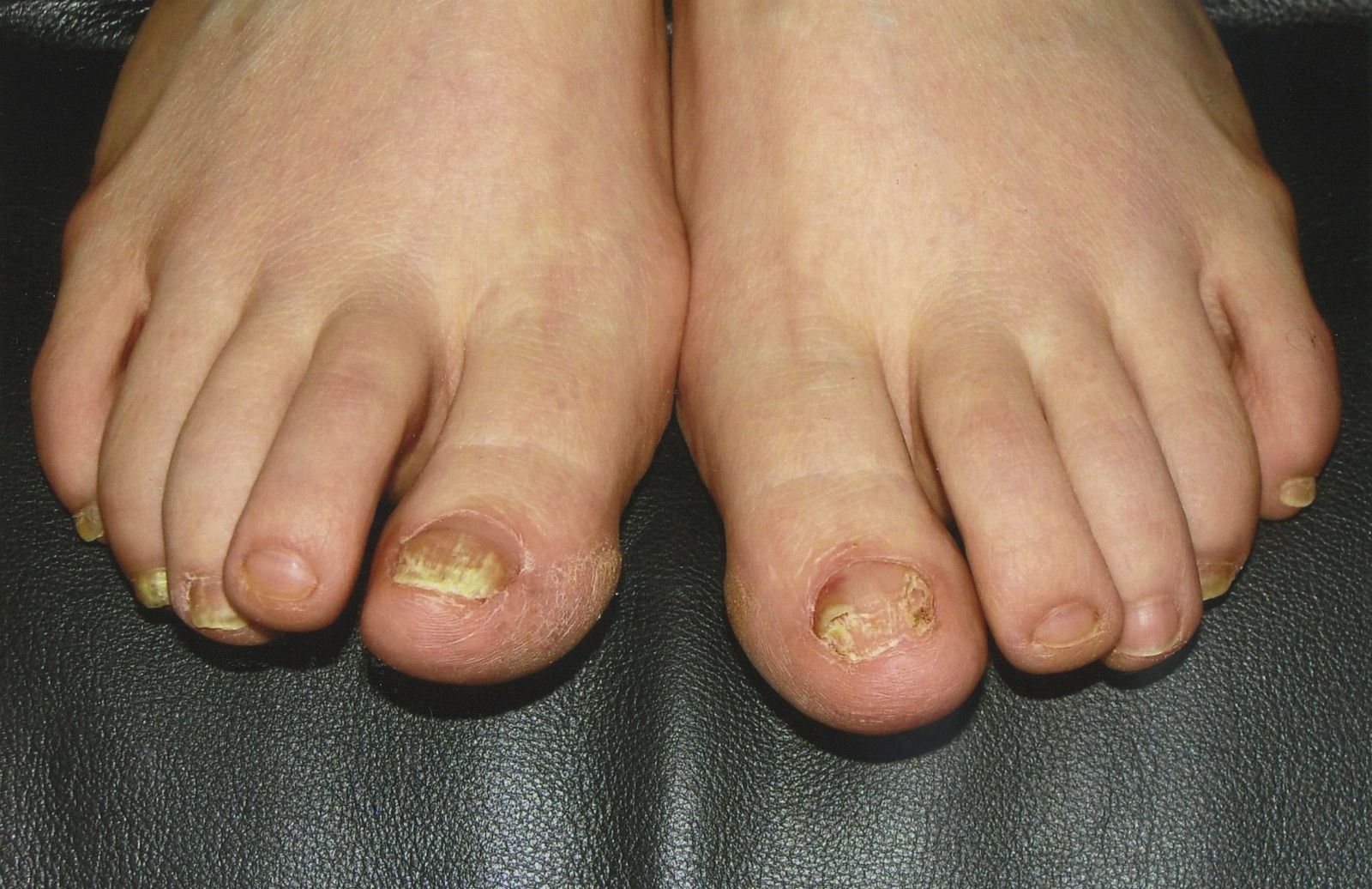 Laser Toenail Fungus Treatment | Advanced Podiatry - Podiatrist in ...