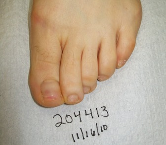 204413 left foot after