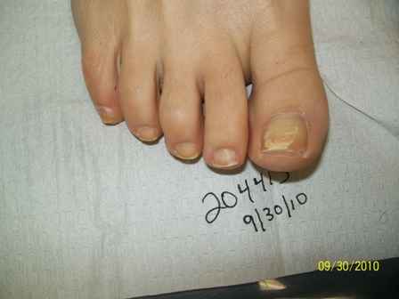 204413 right foot before