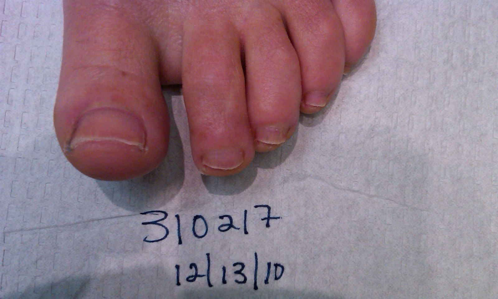 310217 Left Foot 6 Months after laser