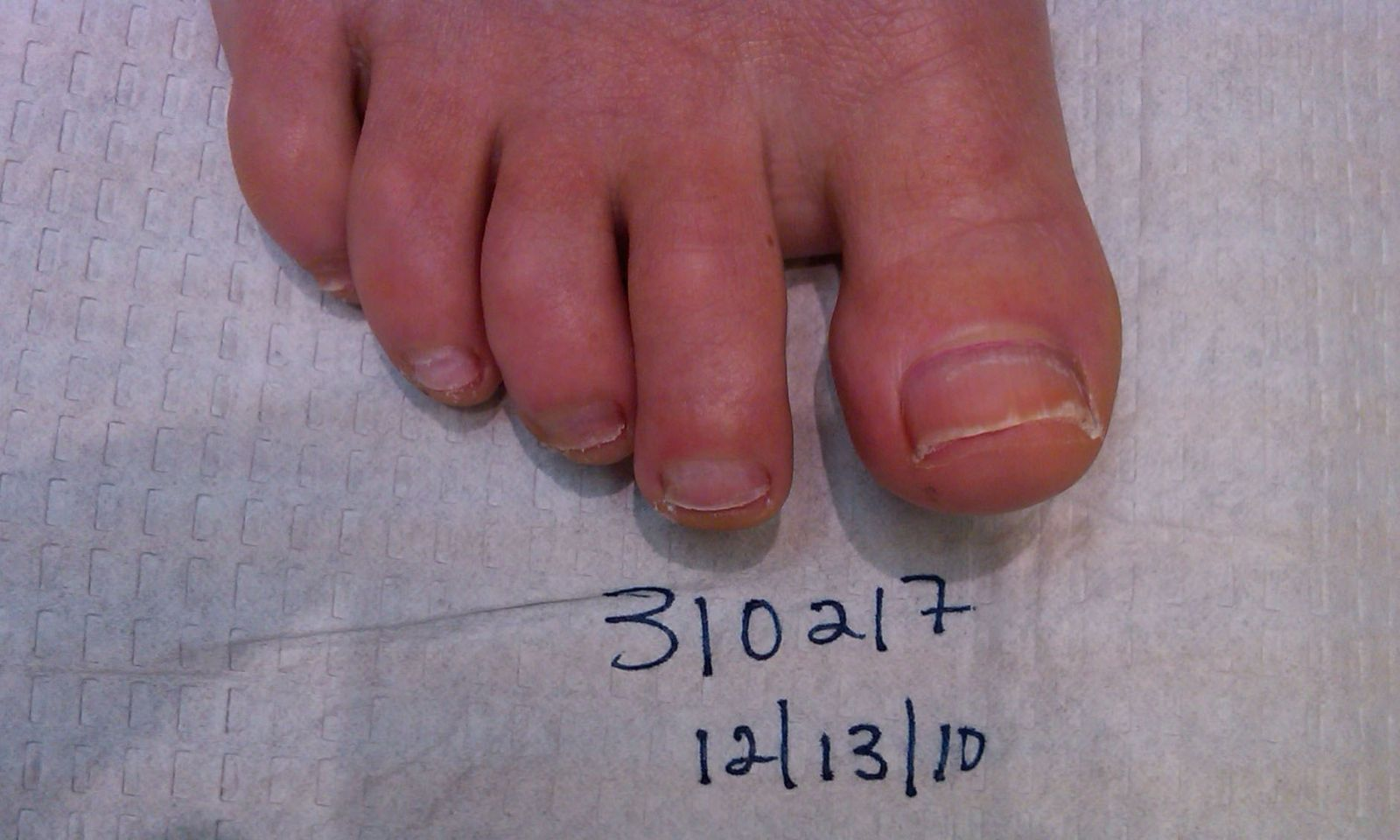 310217 Right Foot 6 Months After Laser