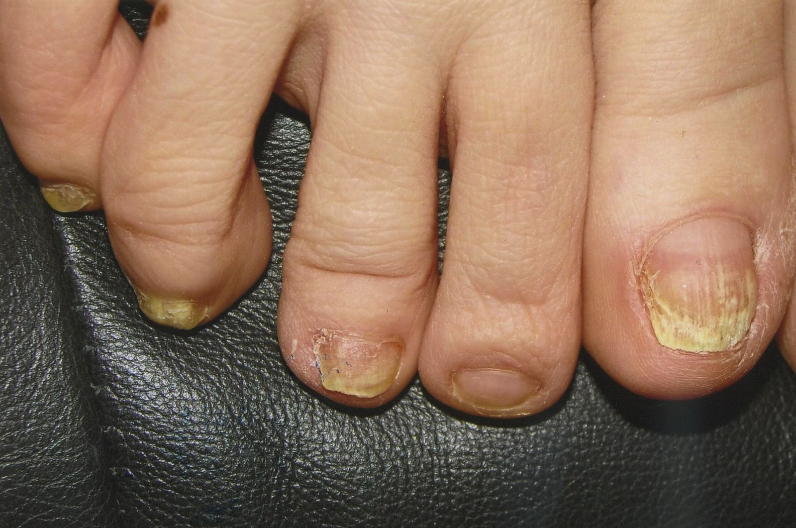Before the laser treatment for toenail fungus