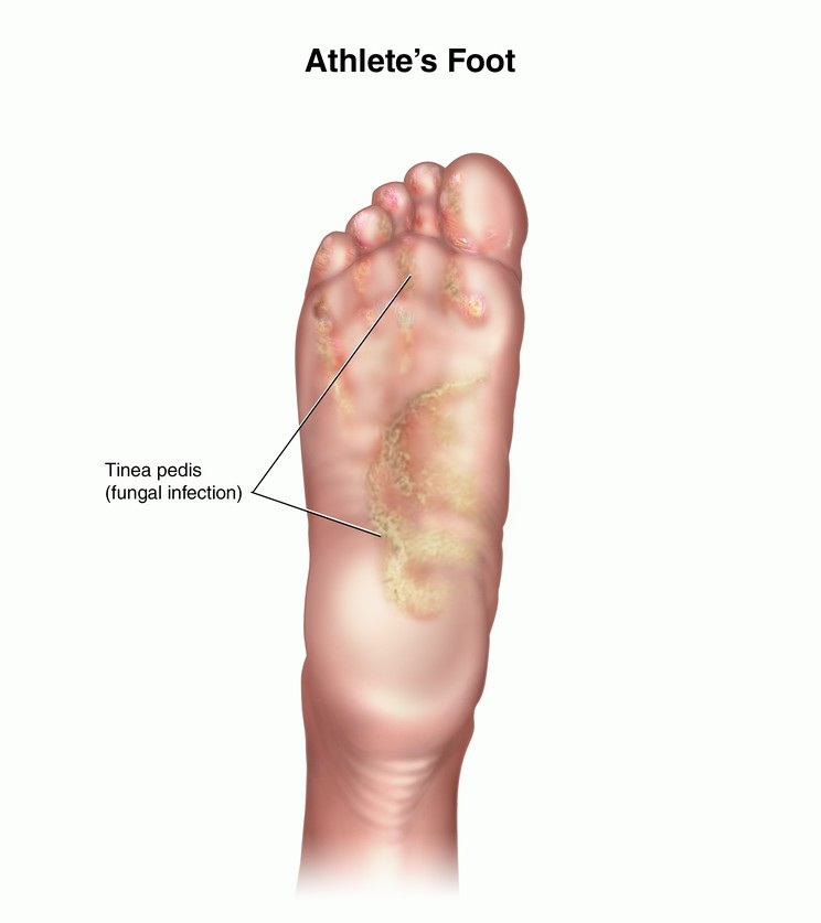 Foot Doctor Blog - Manhasset, Huntington, Plainview ...