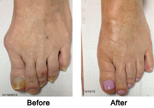Cosmetic Foot Surgery Before and After 2
