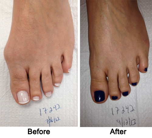 Cosmetic Foot Surgery Before and After 1