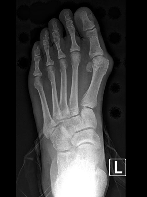 Bunion X-Rays | Advanced Podiatry - Podiatrist in ...