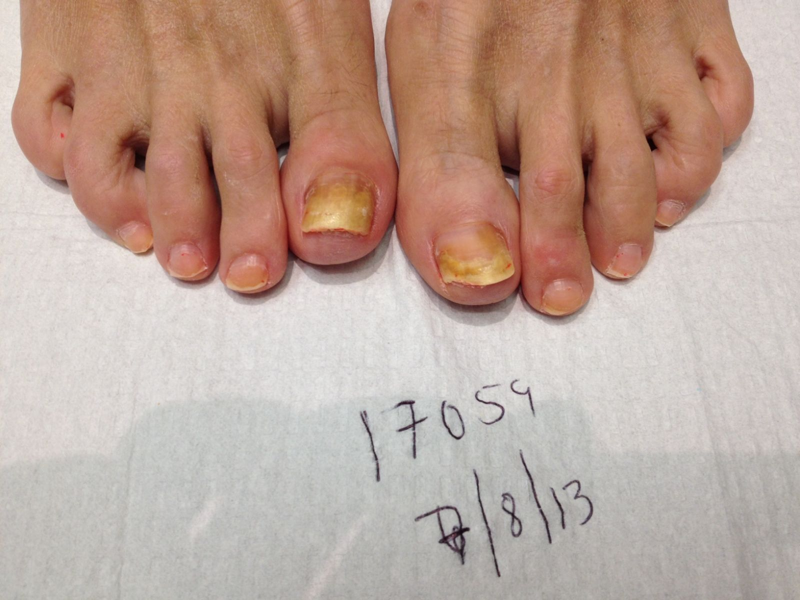 Toenail Fungus Before and After Photos - Podiatrist in Huntington ...