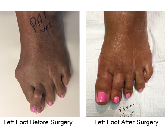 Bunion Before and After Photo Case 14