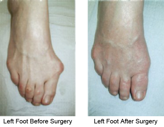 Bunion Before and After Photo Case 1
