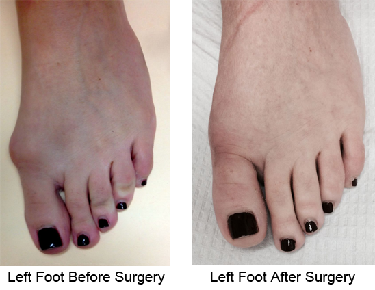 Bunion Before and After Photo Case 2