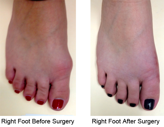Bunion Before and After Photo Case 3