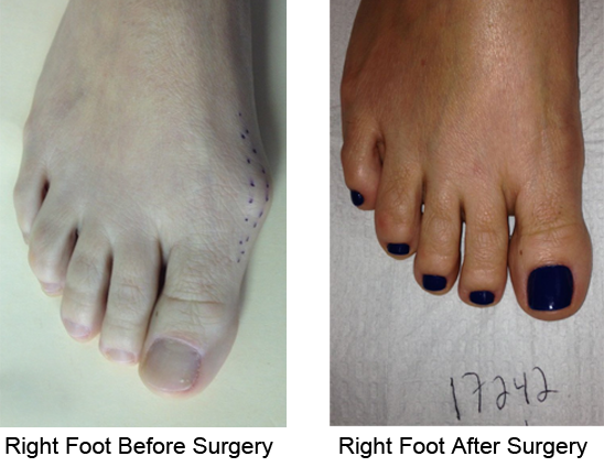 Bunion Before and After Photo Case 4