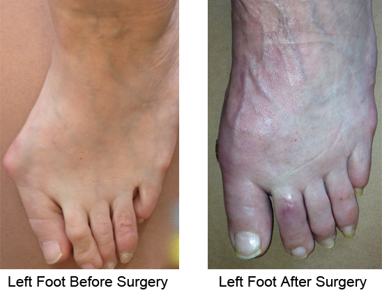 Bunion Before and After Photo Case 5