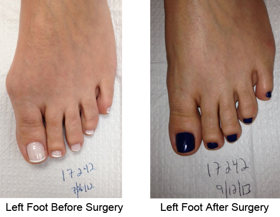 Bunion Before and After Photo Case 6