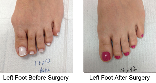Bunion Before and After Photo Case 7