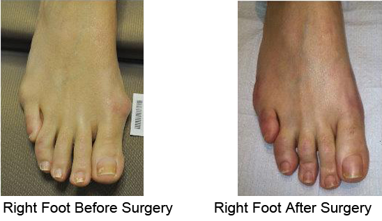Bunion Before and After Photo Case 8