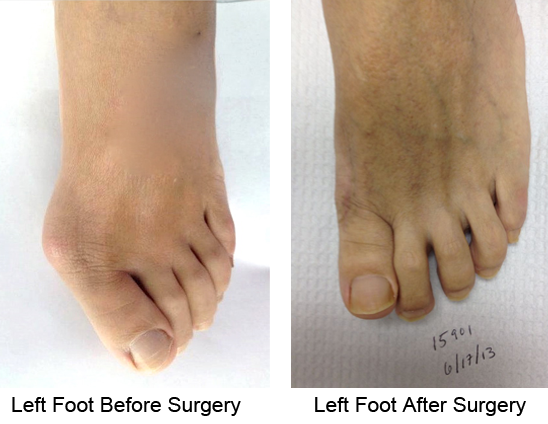 Bunion Before and After Photo Case 10