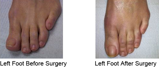 Bunion Before and After Photo Case 11