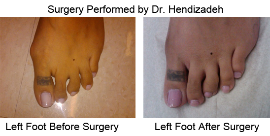 Bunion Before and After Photo Case 12