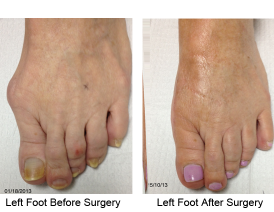 Bunion Before and After Photo Case 13