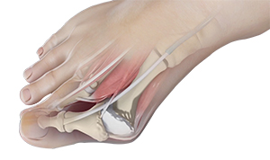 Avoid Metallosis from Bunion Surgery